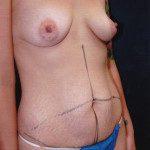 Tummy Tuck 30