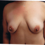 Breast Augmentation 43