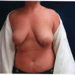 Breast Augmentation 35