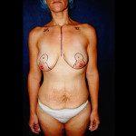 Breast Lifts 1