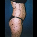 Liposuction 2