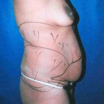 Tummy Tuck 13