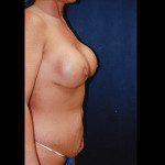 Tummy Tuck 15